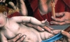Петербургского врача наказали за надомное обрезание