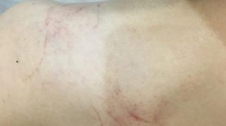 Жительница Перми обвинила преподавателя танцев в избиении ученика