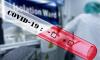 В Саратовской области зафиксировали 78 новых случаев заражения COVID-19