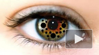 Повальная мода на глазной пирсинг угрожает слепотой